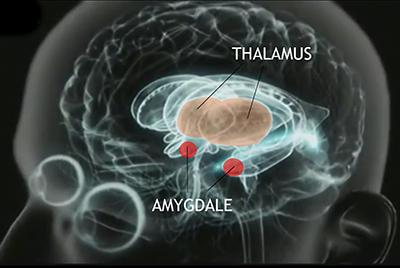 amygdale-cerebrale